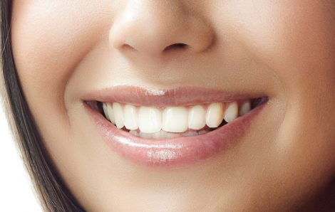 Is Cosmetic Dentistry Right For You? (Part 2)