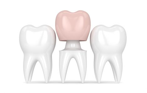 Dental Inlays And Dental Onlays